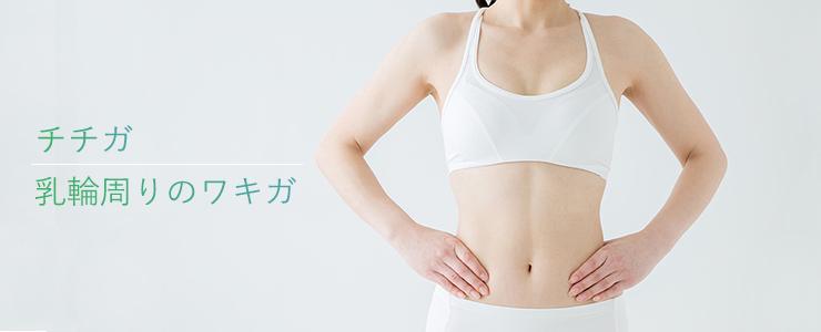 乳輪周りのワキガ・多汗症治療