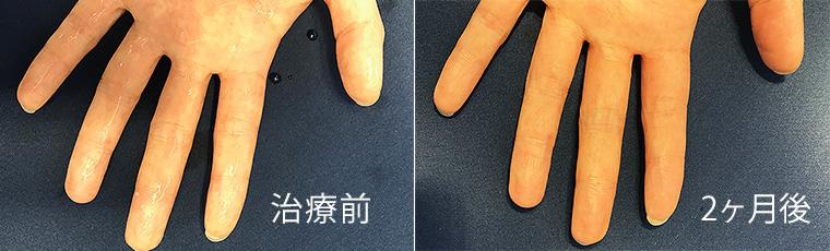 手の平の多汗症治療症例